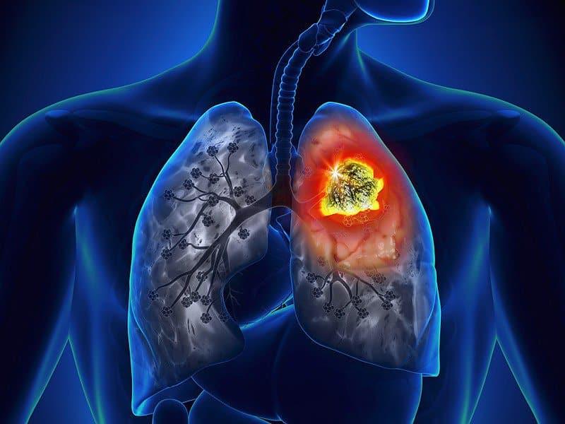 Đông Trùng Hạ Thảo giúp phòng chống di căn ung thư như thế nào?
